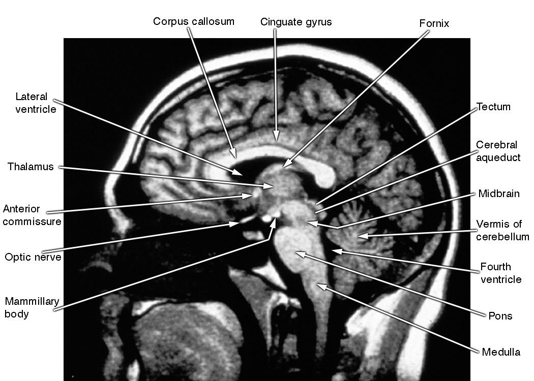 University at Buffalo Neuroscience Slide Atlas